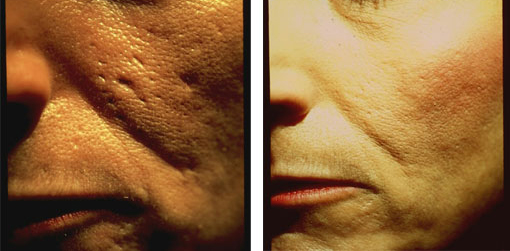 Advanced Dermatology | Medical Skin Care, Anti-Wrinkle ...