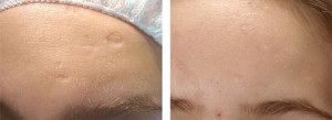 filler injections for acne scars
