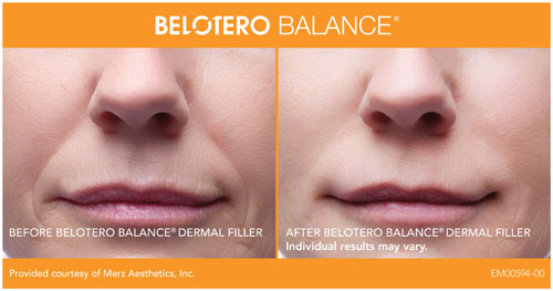 before-after-belotero-balance-in-atlanta-ga-1