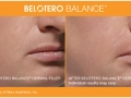 before-after-belotero-balance-in-atlanta-ga-2