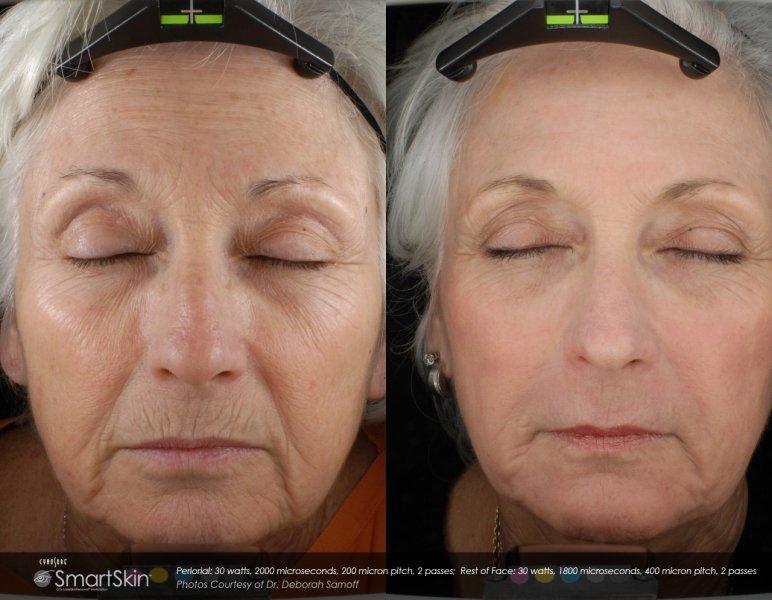 dot-laser-for-wrinkles-in-atlanta-ga-1