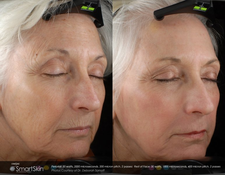Laser Facial Treatment For Wrinkle Porn Archive