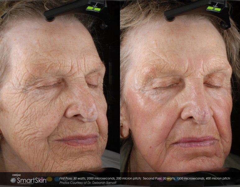 dot-laser-for-wrinkles-in-atlanta-ga-3