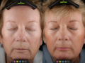 dot-laser-for-wrinkles-in-atlanta-ga-1