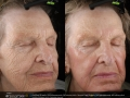 dot-laser-for-wrinkles-in-atlanta-ga-3