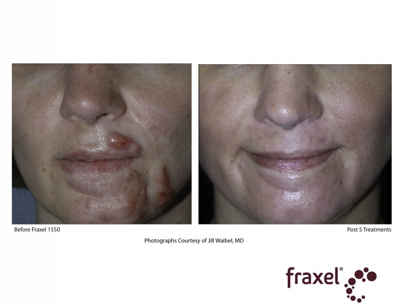 before-after-fraxel-laser-in-atlanta-geogia-1