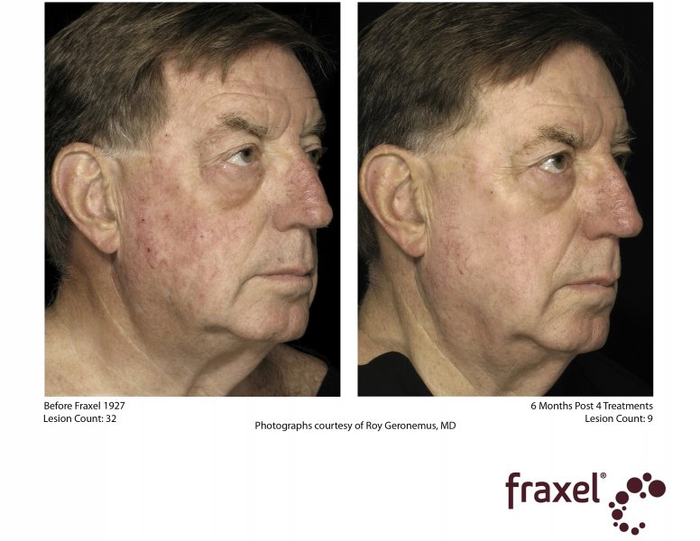 before-after-fraxel-laser-in-atlanta-geogia-10