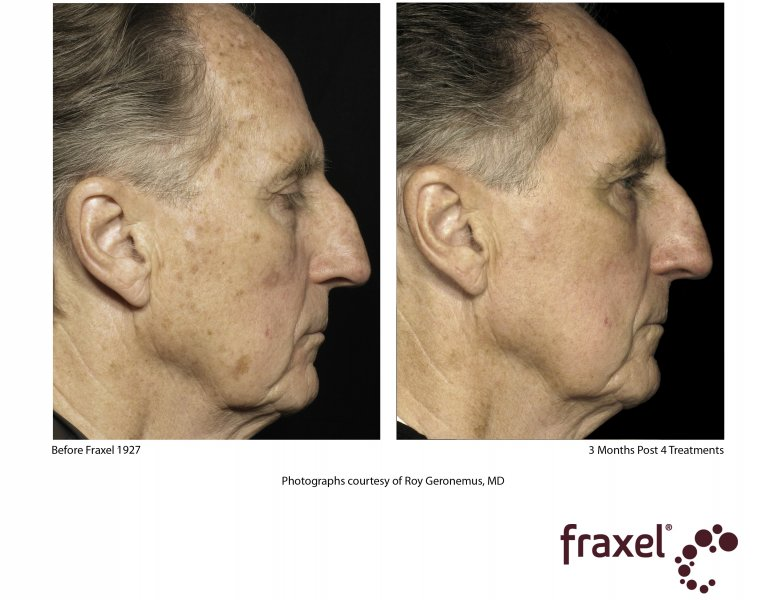 before-after-fraxel-laser-in-atlanta-geogia-13