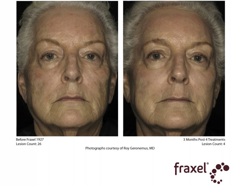 before-after-fraxel-laser-in-atlanta-geogia-14