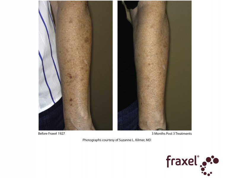 before-after-fraxel-laser-in-atlanta-geogia-17