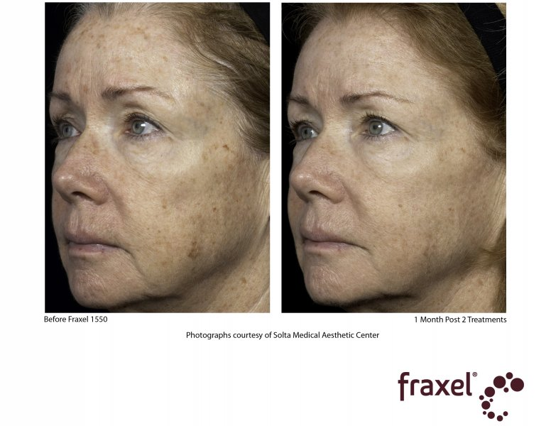 before-after-fraxel-laser-in-atlanta-geogia-2