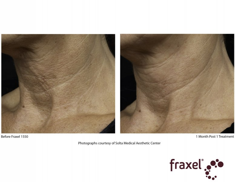before-after-fraxel-laser-in-atlanta-geogia-3