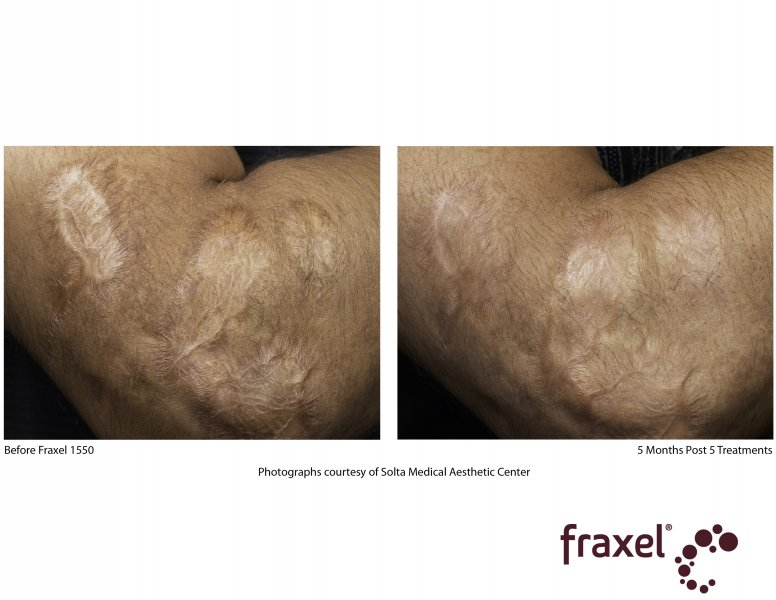 before-after-fraxel-laser-in-atlanta-geogia-4