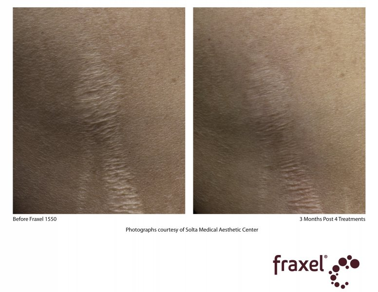 before-after-fraxel-laser-in-atlanta-geogia-6