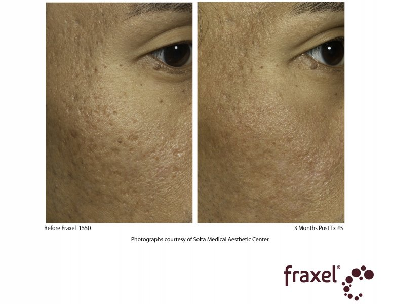 before-after-fraxel-laser-in-atlanta-geogia-8