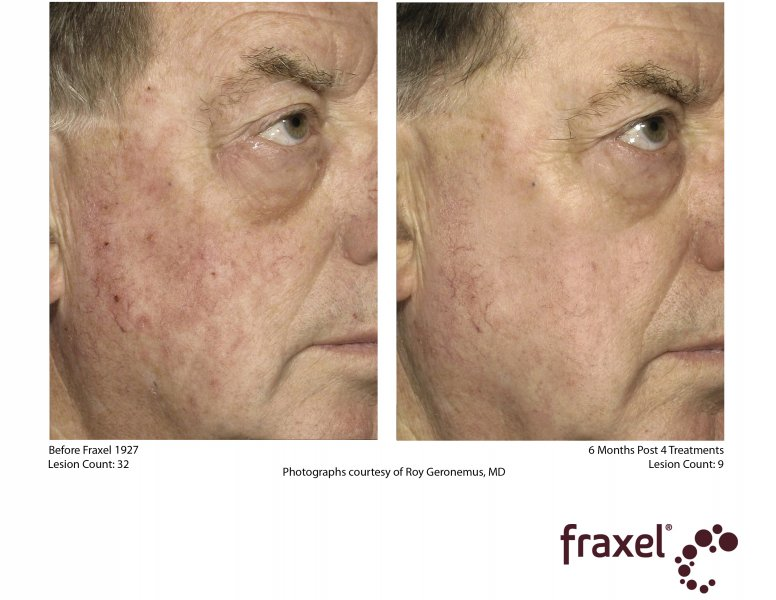 before-after-fraxel-laser-in-atlanta-geogia-9