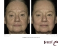 before-after-fraxel-laser-in-atlanta-geogia-11