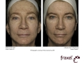 before-after-fraxel-laser-in-atlanta-geogia-12