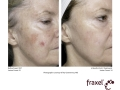before-after-fraxel-laser-in-atlanta-geogia-15