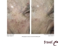 before-after-fraxel-laser-in-atlanta-geogia-16