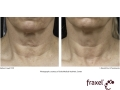 before-after-fraxel-laser-in-atlanta-geogia-5