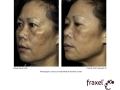 before-after-fraxel-laser-in-atlanta-geogia-7