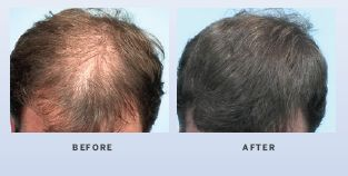 hair-restoration-in-atlanta-georgia-1