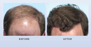 hair-restoration-in-atlanta-georgia-2