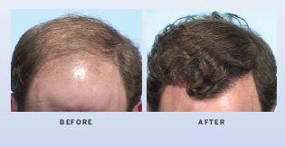 hair-restoration-in-atlanta-georgia-2