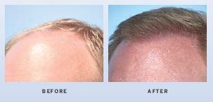 hair-restoration-in-atlanta-georgia-3