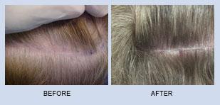 hair-restoration-in-atlanta-georgia-4