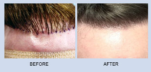 hair-restoration-in-atlanta-georgia-5