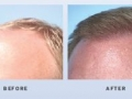 hair-restoration-in-atlanta-georgia-3