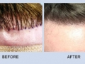 hair-restoration-in-atlanta-georgia-5