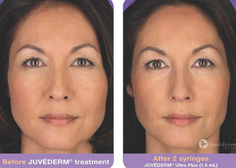 before-after-juvederm-in-atlanta-ga-1