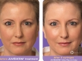 before-after-juvederm-in-atlanta-ga-2