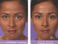 before-after-juvederm-in-atlanta-ga-3