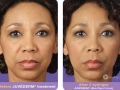 before-after-juvederm-in-atlanta-ga-4