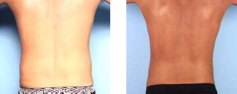 Liposuction of the Flanks (Love Handles)
