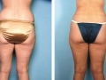 Liposuction of the Buttocks