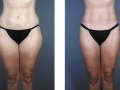 Liposuction of the Outer Thighs (Saddlebags)