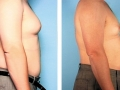 Chest Liposuction (Breast)