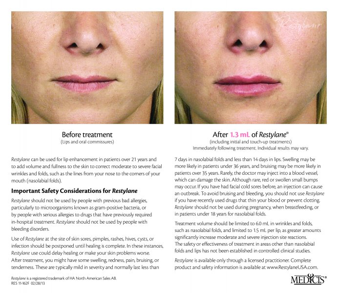 before-after-restylane-in-atlanta-georgia-10