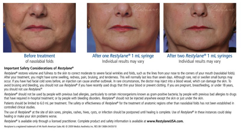 Restylane before & after photos for web