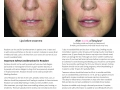 before-after-restylane-in-atlanta-georgia-6