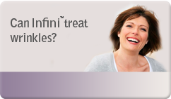 can infini treat wrinkles
