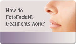 How do FotoFacial® treatments work?