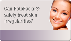 Can FotoFacial® safely treat skin irregularities?
