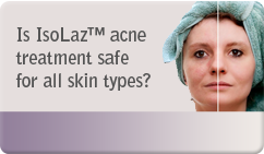 Is IsoLaz™ acne treatment safe for all skin types?