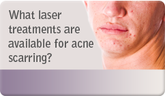 laser treatments available for acne scarring